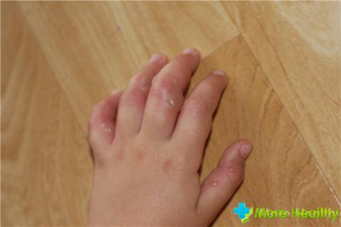 Маленькие волдыри на пальцах