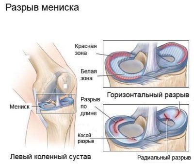 térdízületi fájdalom az alsó lábig