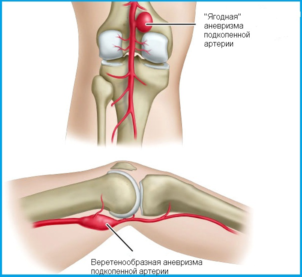 chondroprotector károsodása a térd meniszkuszában